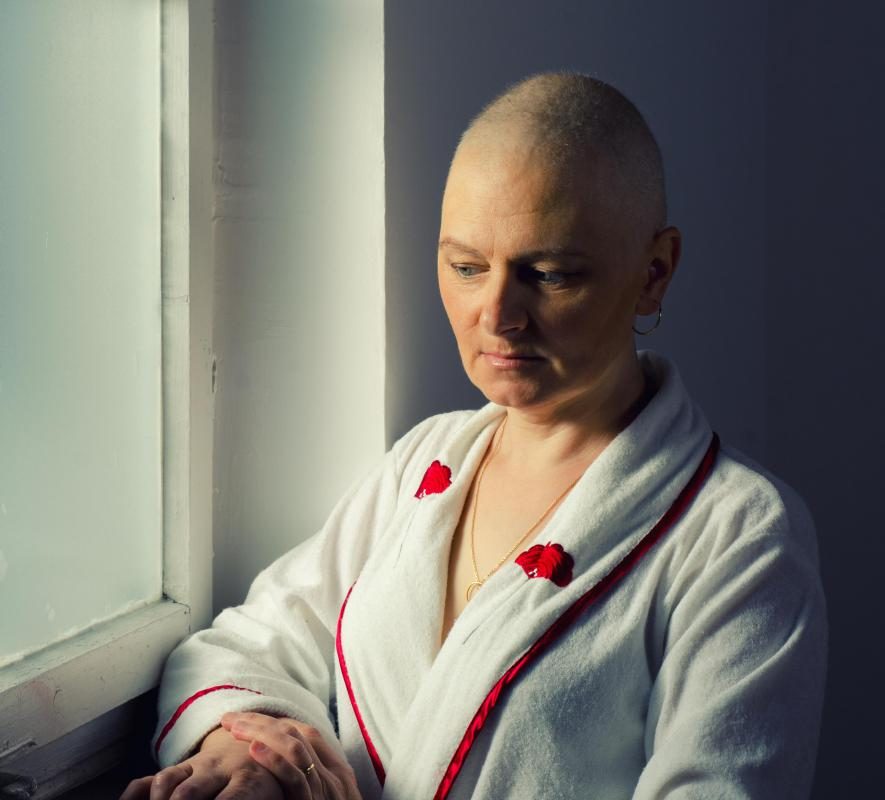 Hair loss often occurs as a side effect of chemotherapy.
