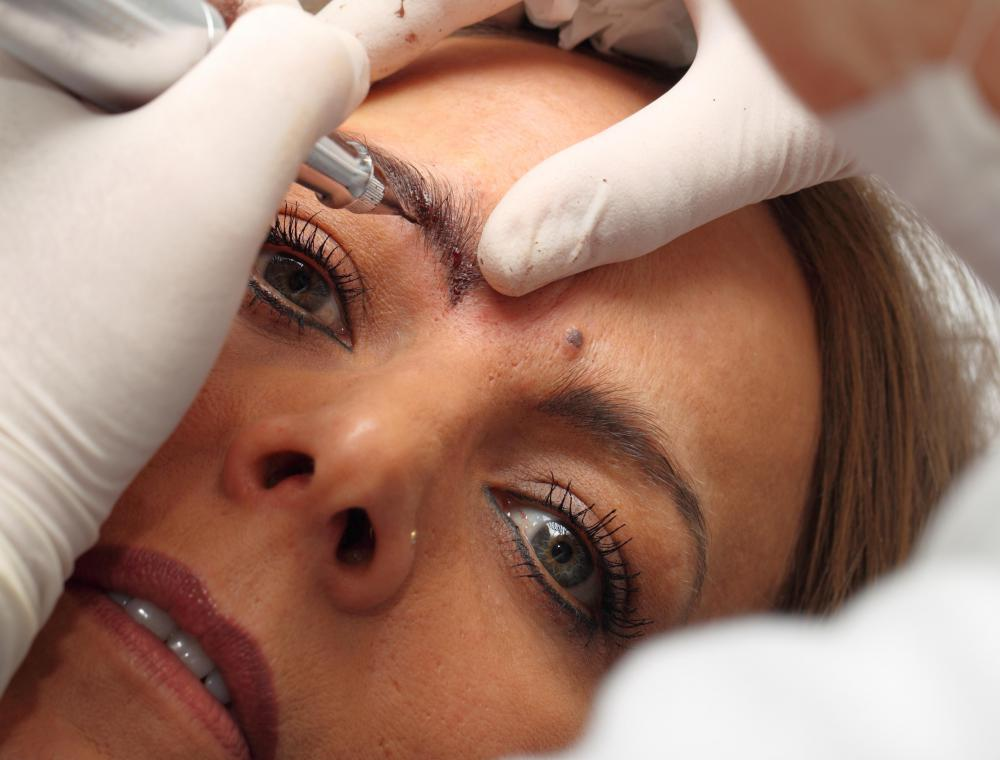 A technician will use an embroidery tool to create small ink lines along the brow line during an eyebrow embroidery process.