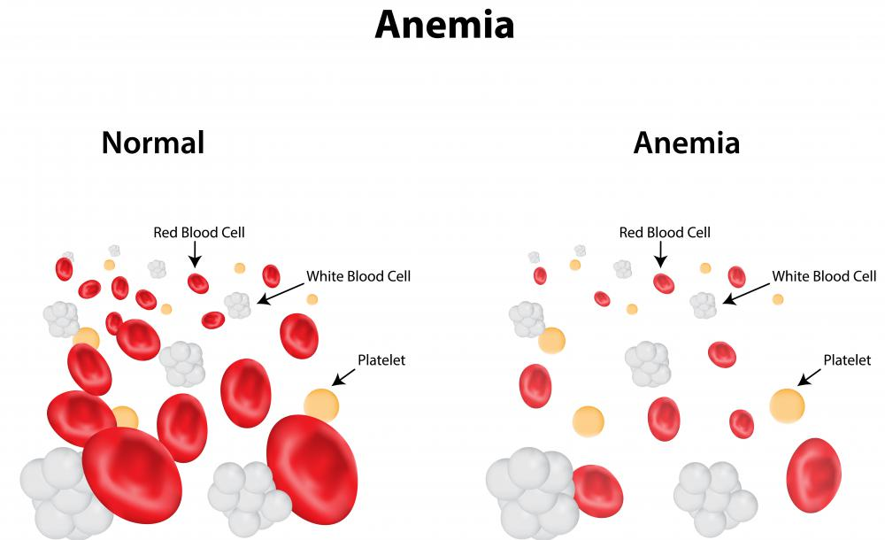Anemia can contribute to gray hair as a result of an iron deficiency in the blood.