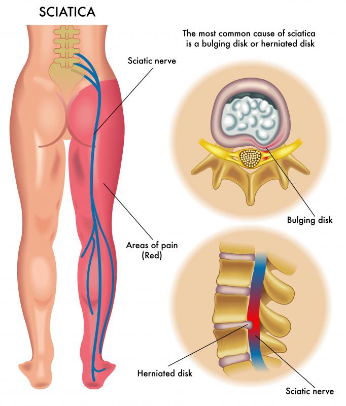 A mud treatment known as peloid therapy may offer relief for problems with the sciatic nerve, which can cause pain and numbness down the leg.