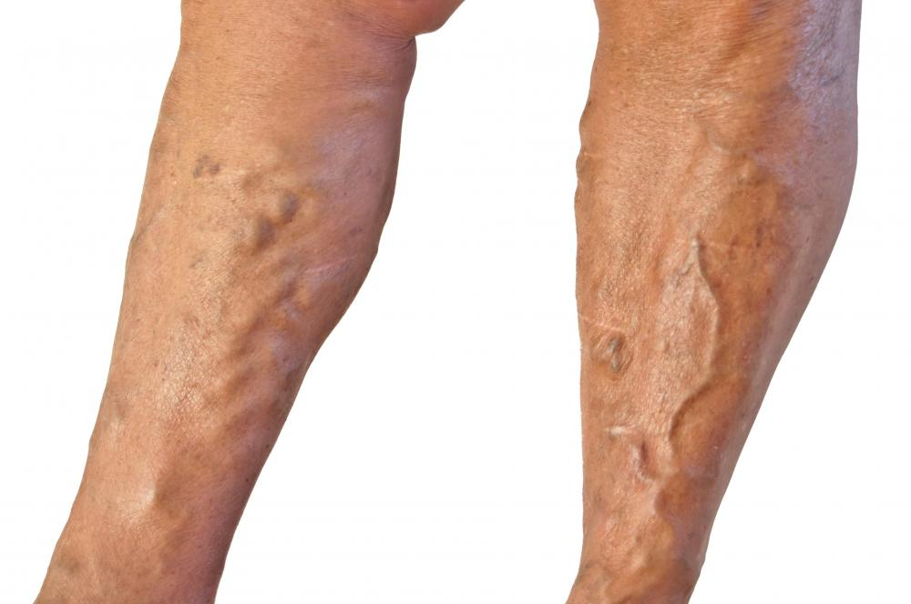 Clay sage is sometimes used in the treatment of varicose veins.