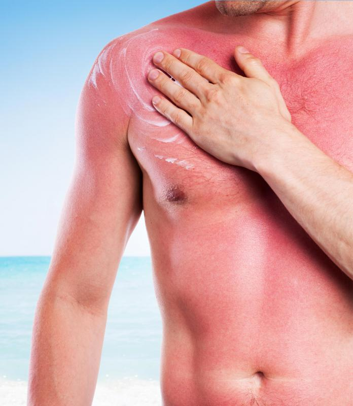 Sunburns should not be exfoliated until the burn has healed.
