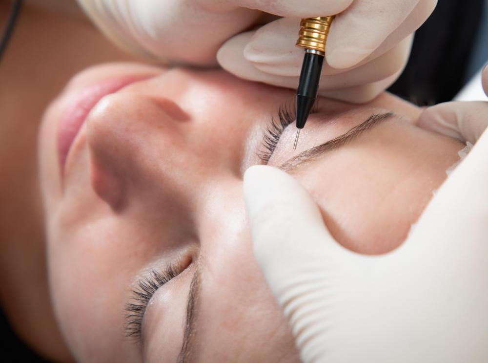 Permanent makeup may be used for eyebrow correction.