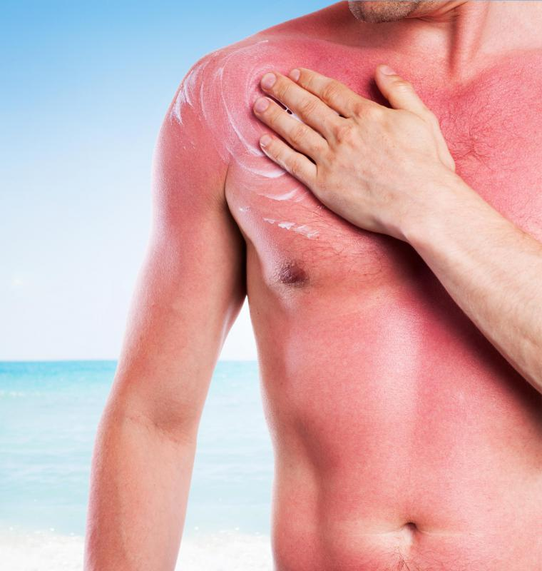 People with Fitzpatrick skin types I-II often sunburn easily.
