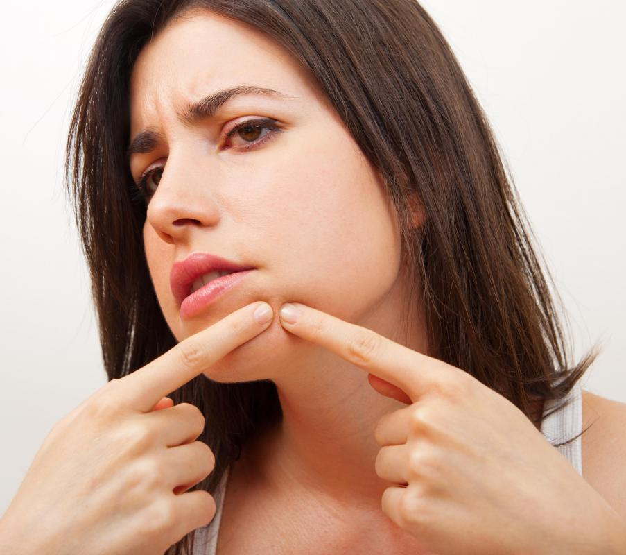 Peloid may be used to reduce the occurrence of blackheads.