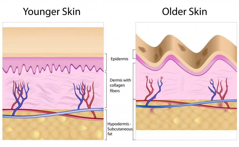 A diagram of younger skin and older skin showing how the decrease in collagen can lead to wrinkles.